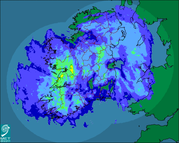 "Unfortunately, Irish people are all too familiar with the ""rainfall radar""!"